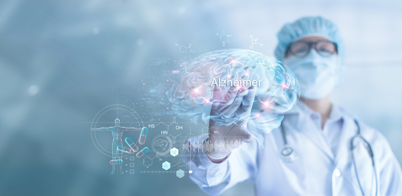 Alzheimer-directortic-madrid-españa